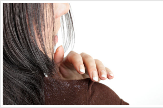 Kepekli saçlara kesin çözüm