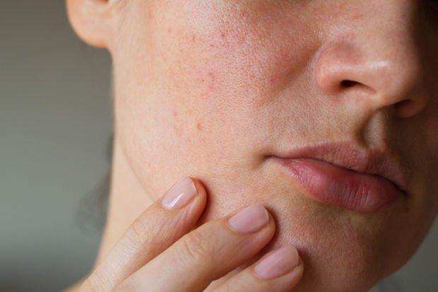 Stres sadece hayatımızı değil, cildimizi de karartıyor!