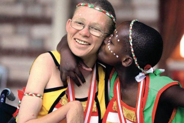 10 ülkeden 200 engelli çocuk misafirliğe geliyor