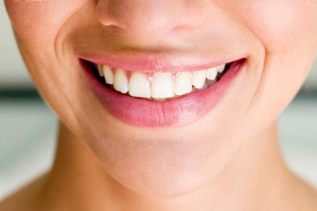Gülüş estetiğinde doğal mükemmellik