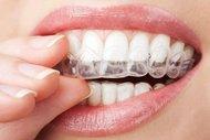 Telsiz ortodonti hakkında bilmeniz gerekenler...