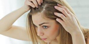 Saçlarınızı kepekten arındırmanın doğal yolları...