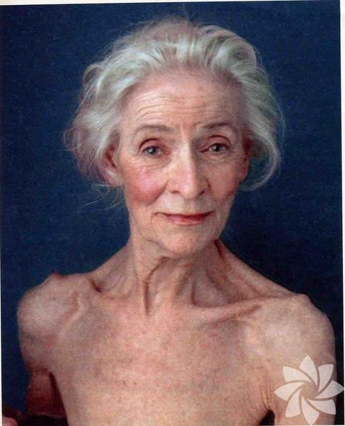 """1. Fazla zayıf olmakEvet, maalesef fazla zayıf olmak da dezavantaj. """"Yüz yağlarını kaybetmek sarkmalara ve yaşlı bir görünüme sebep olur"""" diyor Tulane Üniversitesi'nde klinik profesör dermatolog Mary P. Yup. Sürekli kilo değişimi de aynı şekilde.Çözüm:Uygun beslenme ve egzersiz ile sağlıklı bir kiloda sabit kalmaya çalışın. Ve yüzünüzü beslemeyi unutmayın. Sizi içten dışa besleyecek yiyecekler tüketin:* Somon balığı ve ceviz gibi Omega 3 yağları içeren besinler* Kolajen üretimini artıran C vitamini, narenciye, kivi ve ıspanak* Güneş hasarına karşı koruyan likopen içeren domates sosu ve pembe greyfurt"""