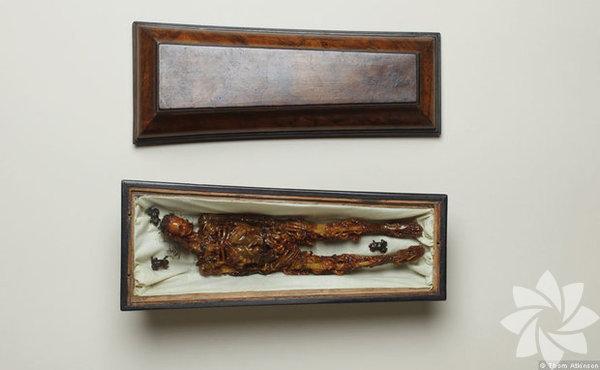 Balmumundan yapılmış çürüyen insan vücudu modeli.