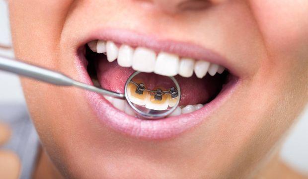 Görünmez diş teline ne dersiniz?