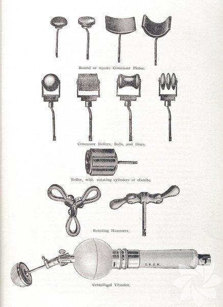 """Vibratör nasıl icad edildi? Günümüzde kullanılan elektronik vibratörlerin ilki, yaklaşık yüz elli yıl önce kadınların """"histerilerini iyileştirmek"""" için geliştirildi."""