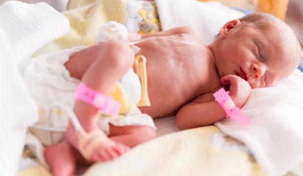 Her yıl 150 bin prematüre bebek doğuyor