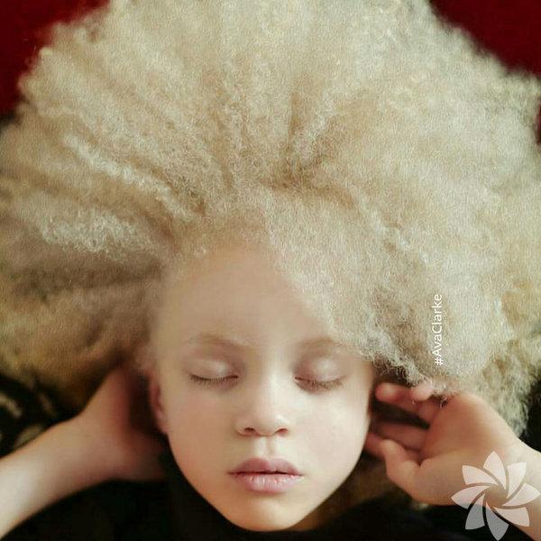Albino insanlar