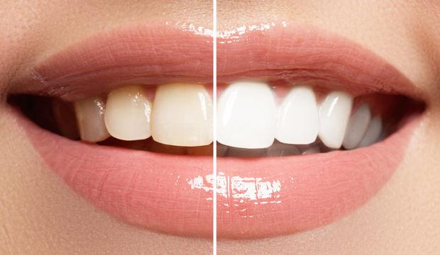 Dişlerinizi fırçalayamıyorsanız beyaz peynir yiyin!