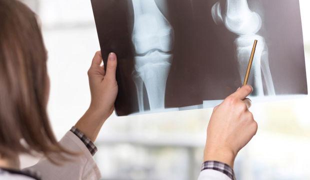 Kemik sağlığını korumanın yolları
