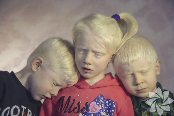 Türkiye'nin beyaz melekleri  Albinolu kardeşler Cem (solda), Cemre(ortada)Akpınar ve arkadaşları Furkan Özorman (sağda) – Şebnem Çoşkun