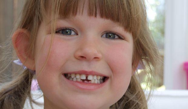 Çocukların diş problemlerinde acil müdahaleler