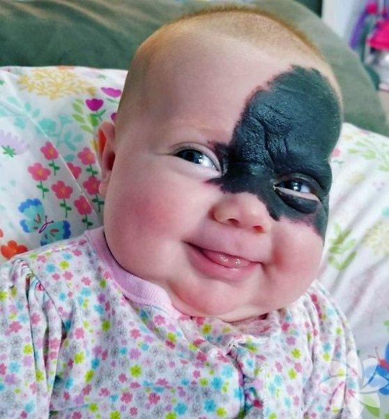 Bu bebeğin yüzündeki doğum izi onu küçük bir süper kahramana çevirdi