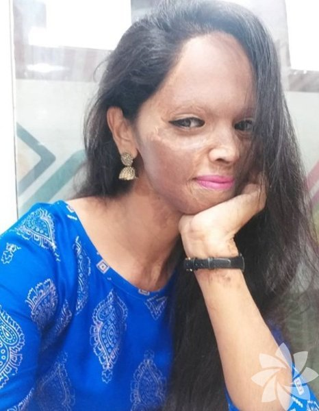 Laxmi Agarwal kimdir? Laxmi Agarwal, 1 Haziran 1990'da Hindistan, Yeni Delhi'de doğdu. Genç kadın, 2005 yılında Gudda adında bir kişi tarafından asit saldırısına uğradı.