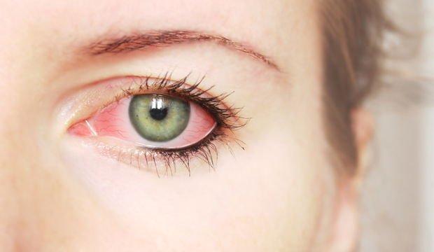 Göz kanlanması neye işaret eder?