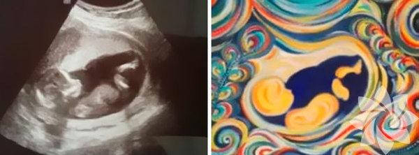 Laura Steerman 35 yaşında, üç çocuk annesi ve ultrason fotoğraflarını inanılmaz güzellikte çizimlere dönüştürüyor.