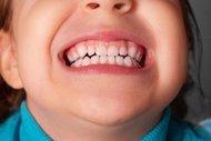 Tecrübelerim: Çocuklarda diş gıcırdatma