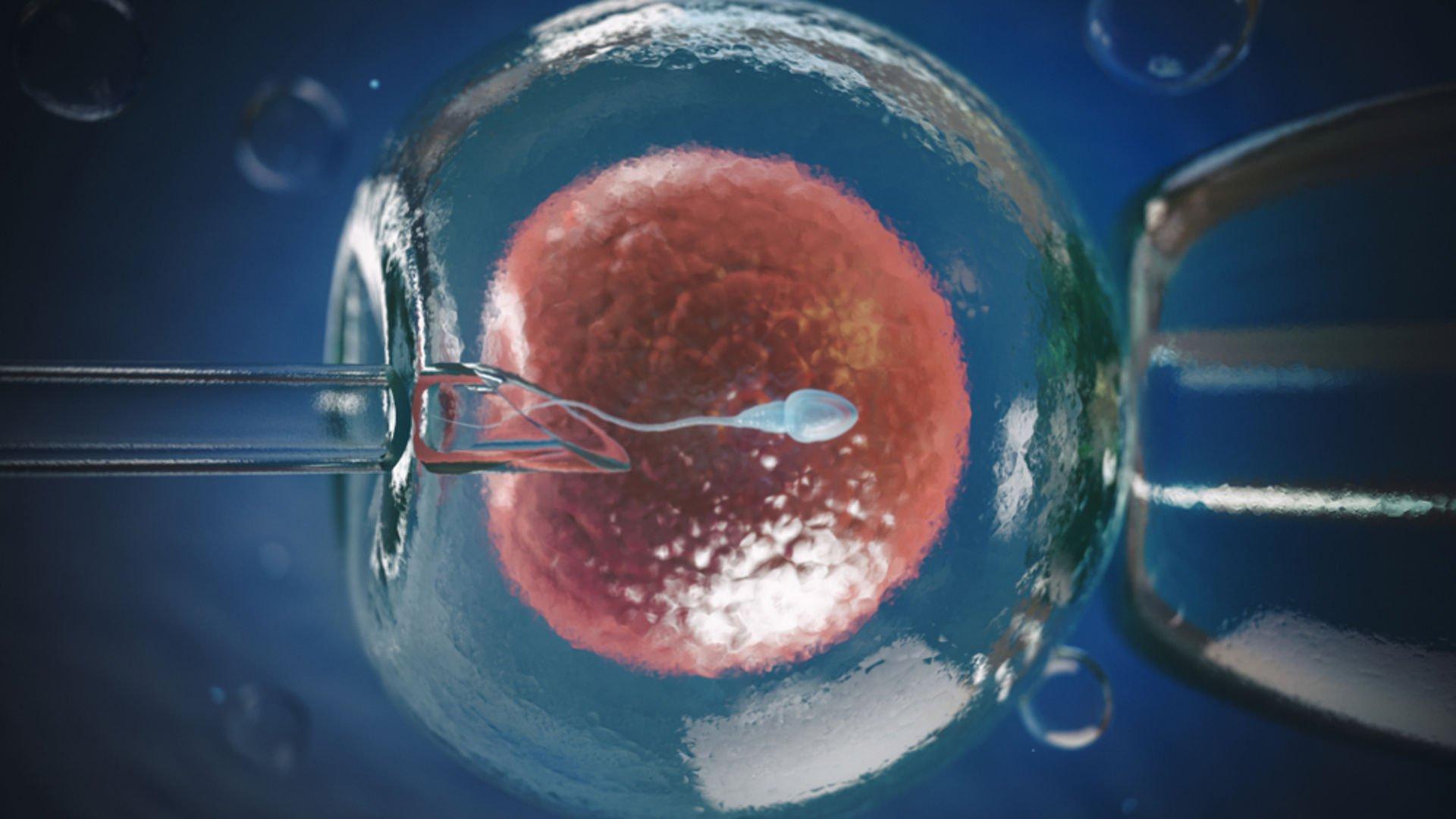 Erkek infertilitesi nedir ve nasıl anlaşılır?
