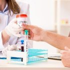 Sperm DNA Hasarı sebepleri ve tedavi yöntemleri nelerdir?